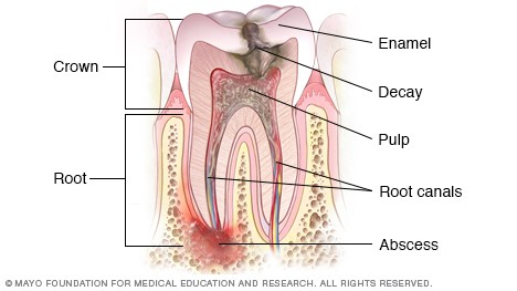 درمان ریشه