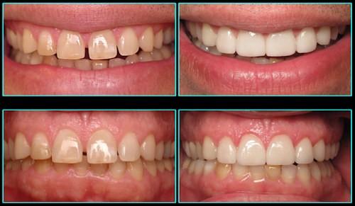 شکاف بین دندانی (دیاستم دندانی)