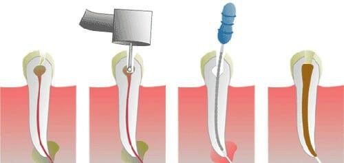 پر کردن دندان ها