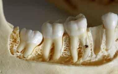 لق شدن دندان در بزرگسالان