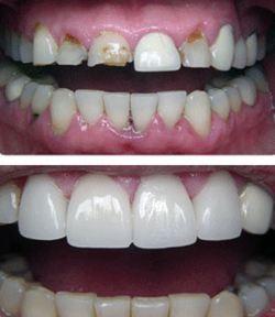 لامینت یا ونیر دندان