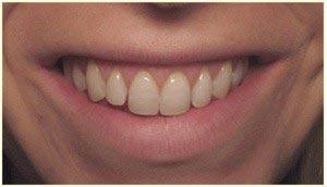 لبخند لثه ای (خنده ی لثه نما)