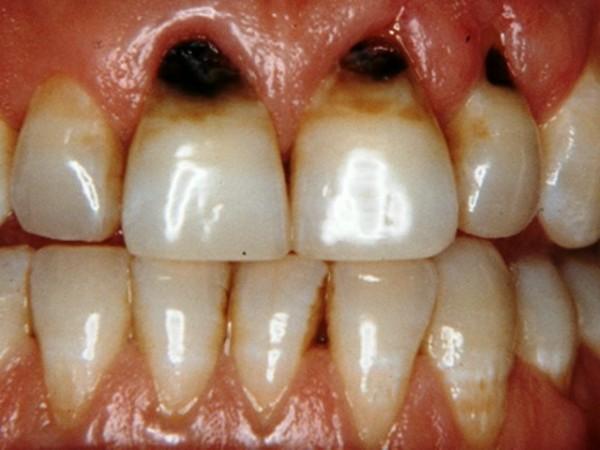 پوسیدگی های دندانی