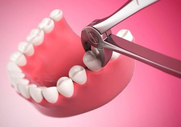 اقدامات لازم پس از کشیدن و جراحی دندان
