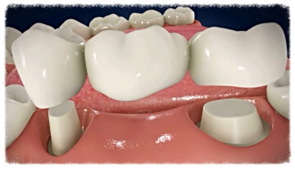 بریج دندان چیست