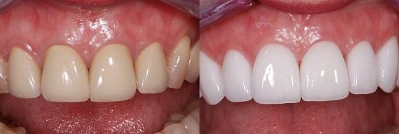 روشهای سفید کردن دندان
