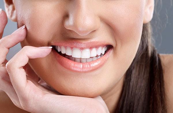 فواید و کاربردهای ونیر دندان (لمینت)