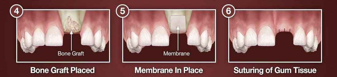 پیوند استخوان پیش از کاشت ایمپلنت دندان