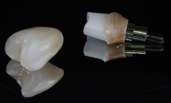 روکش ایمپلنت دندان