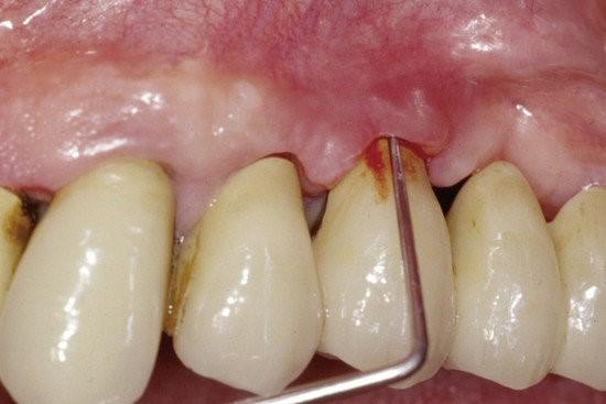 بیماری های شایع پس از کاشت ایمپلنت دندان