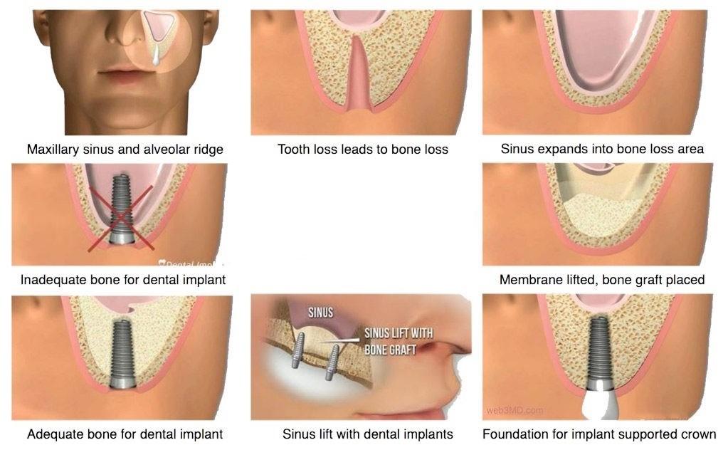 جراحی سینوس لیفت قبل از کاشت ایمپلنت دندان