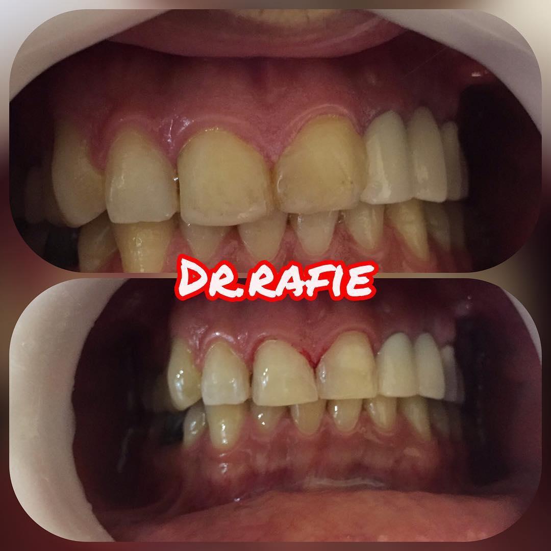 اصلاح ونیر کامپوزیت دندانهای قدامی