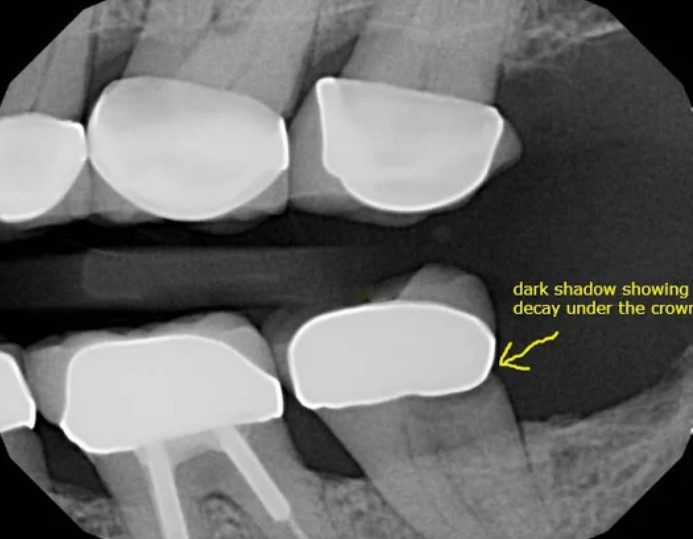 مشکلات و عوارض روکش دندان