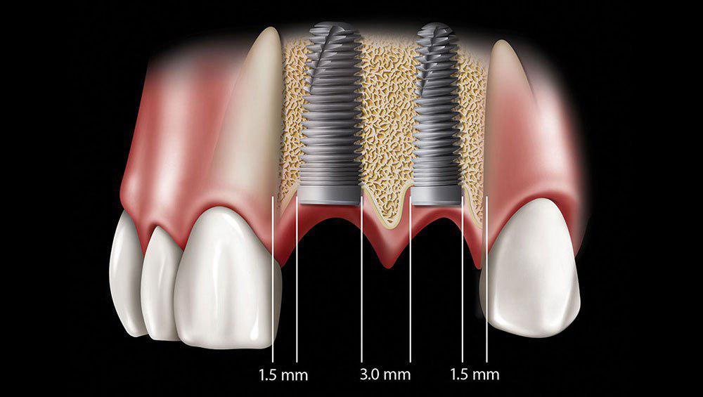 موفقیت کاشت ایمپلنت های دندانی