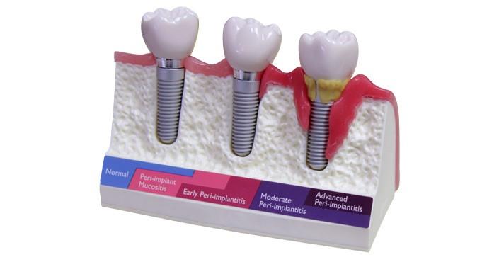 انواع عفونت ایمپلنت های دندانی