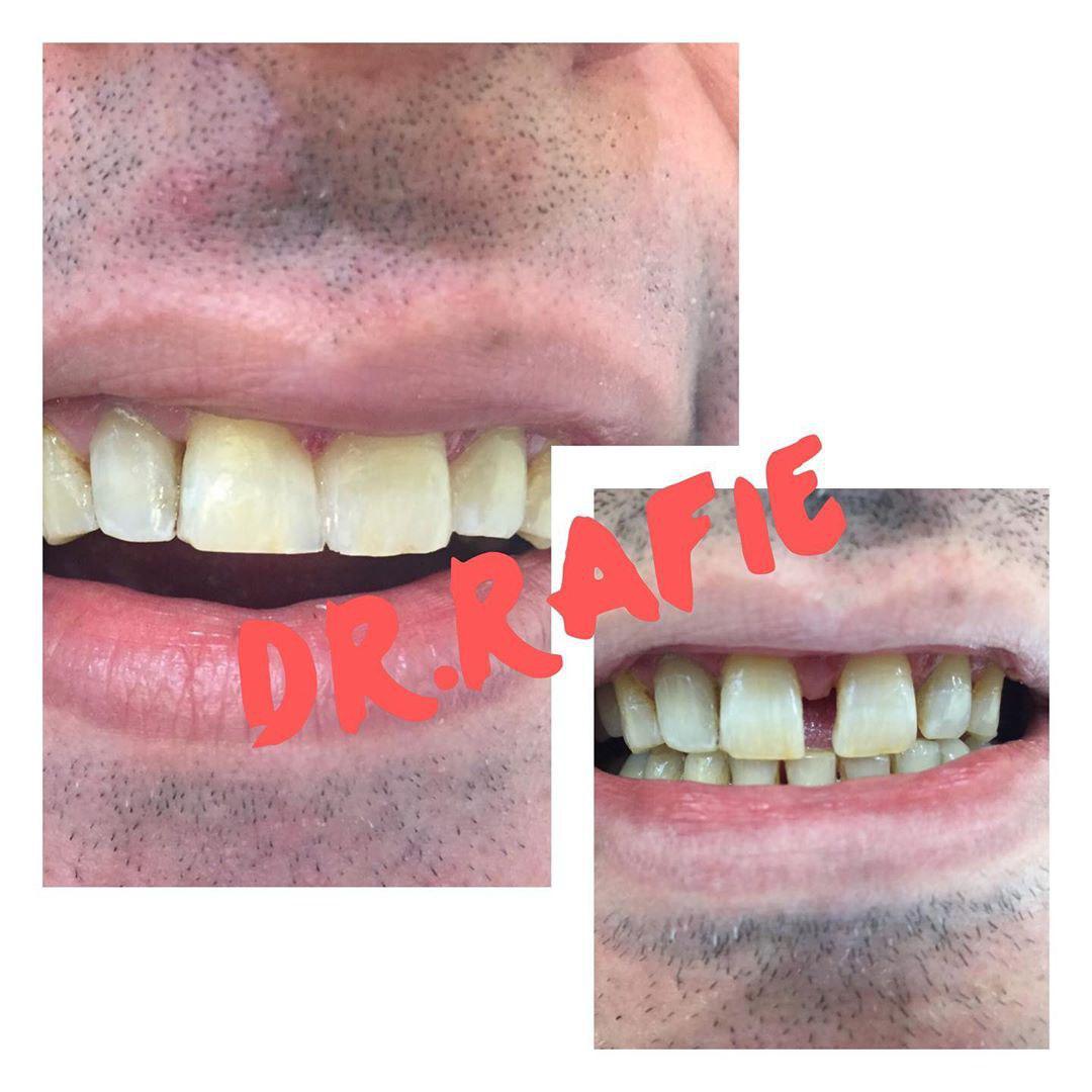 بستن فاصله بین دندان ها با کامپوزیت