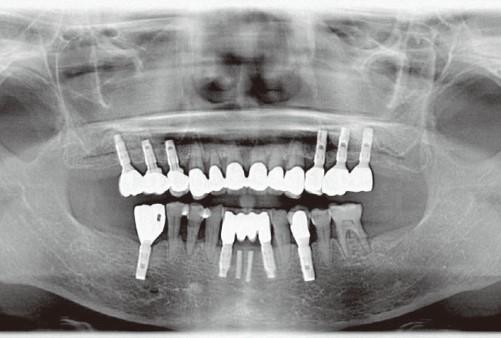 تصاویر رادیوگرافی در کاشت ایمپلنت های دندانی