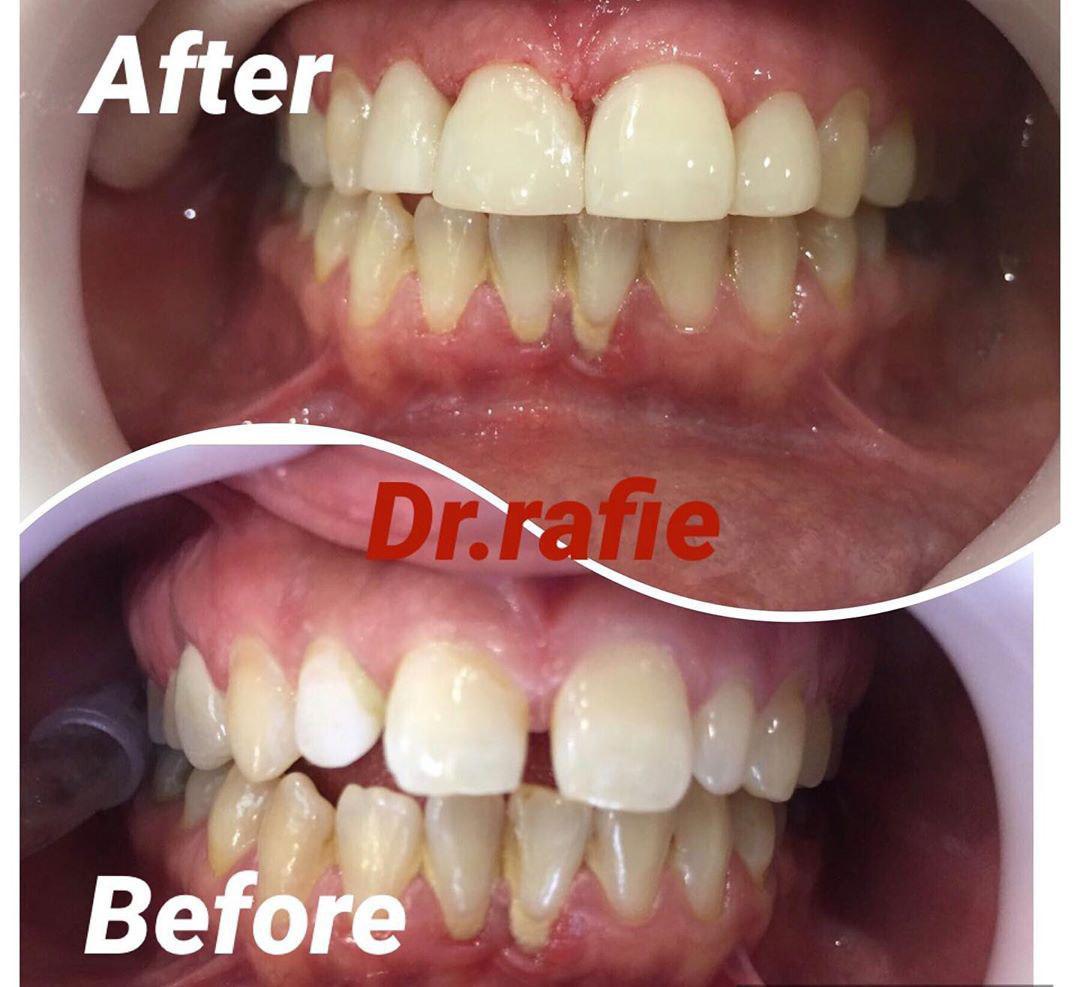 بستن فضای خالی دندانها با کامپوزیت