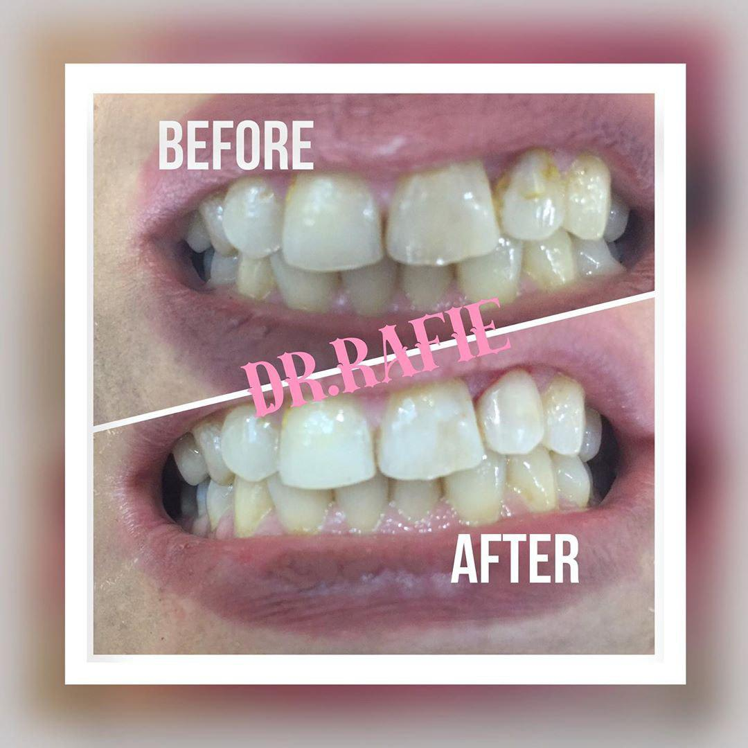 ترمیم کامپوزیت دندان لترال