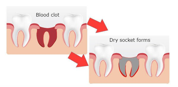 خشکی حفره دندان