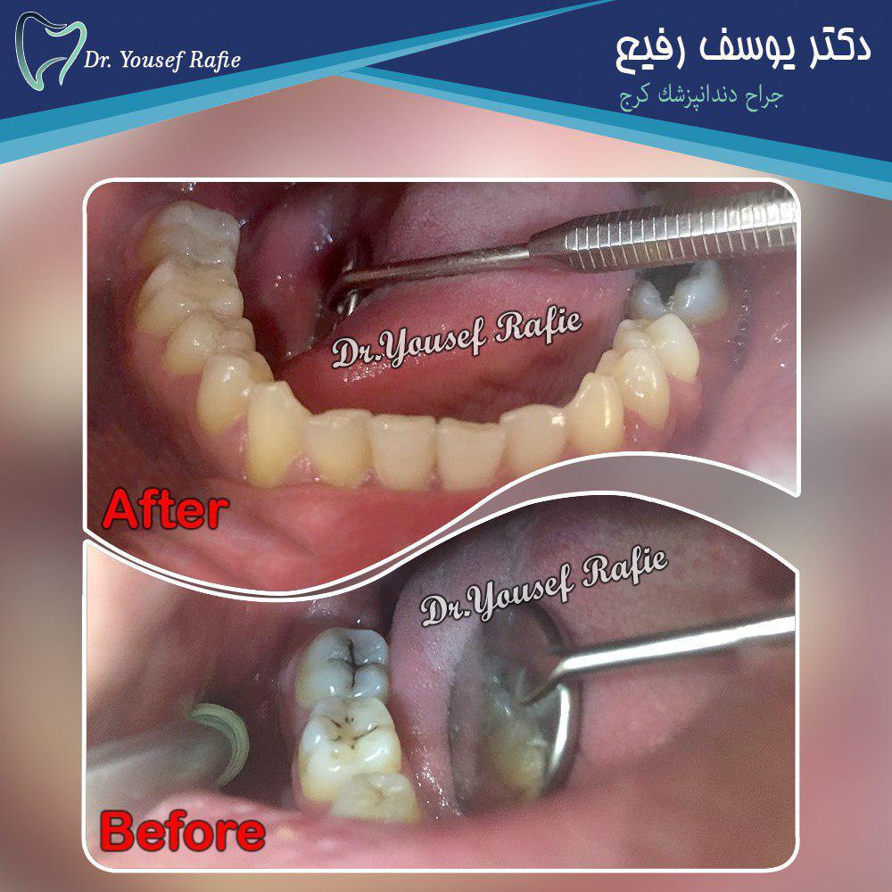 ترمیم کامپوزیت دندانهای خلفی