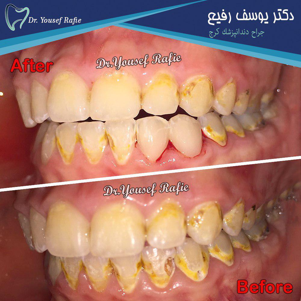 ترمیم پوسیدگی دندان قدامی با کامپوزیت