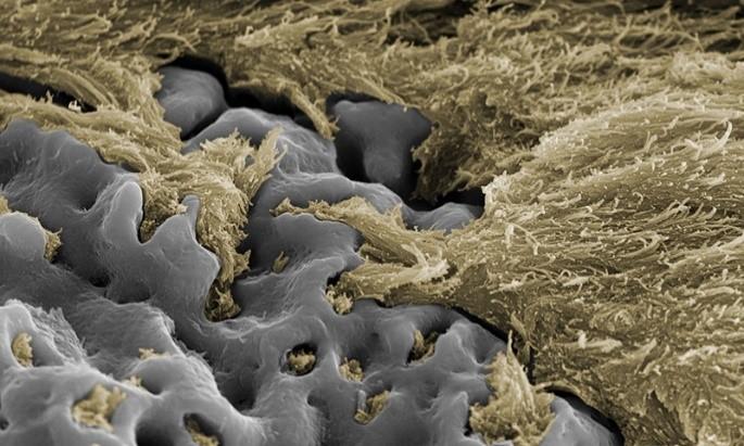مواد سازنده ایمپلنت