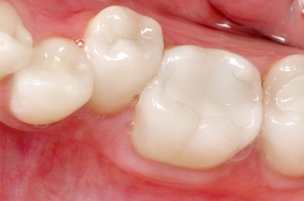 هزینه پر کردن دندان در کرج