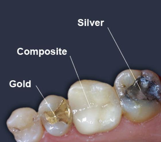مواد پر کردن دندان