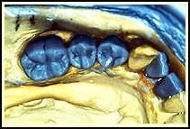 بریج های دندانی بر پایه ایمپلنت