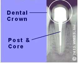 پست و کورهای دندانی