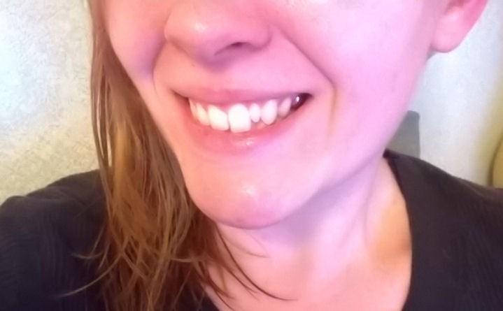 نیفتادن دندان های شیری