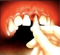 کنده شدن دندان