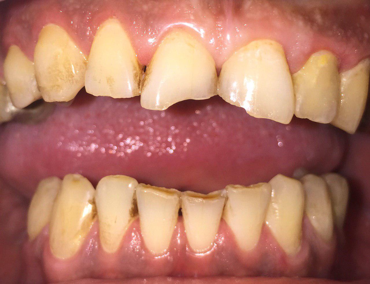 ترمیم دندانهای قدامی شکسته