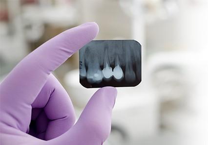 دوام ایمپلنت دندانی