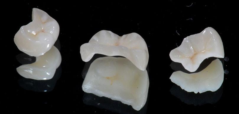 اینله، آنله، و روکش دندان