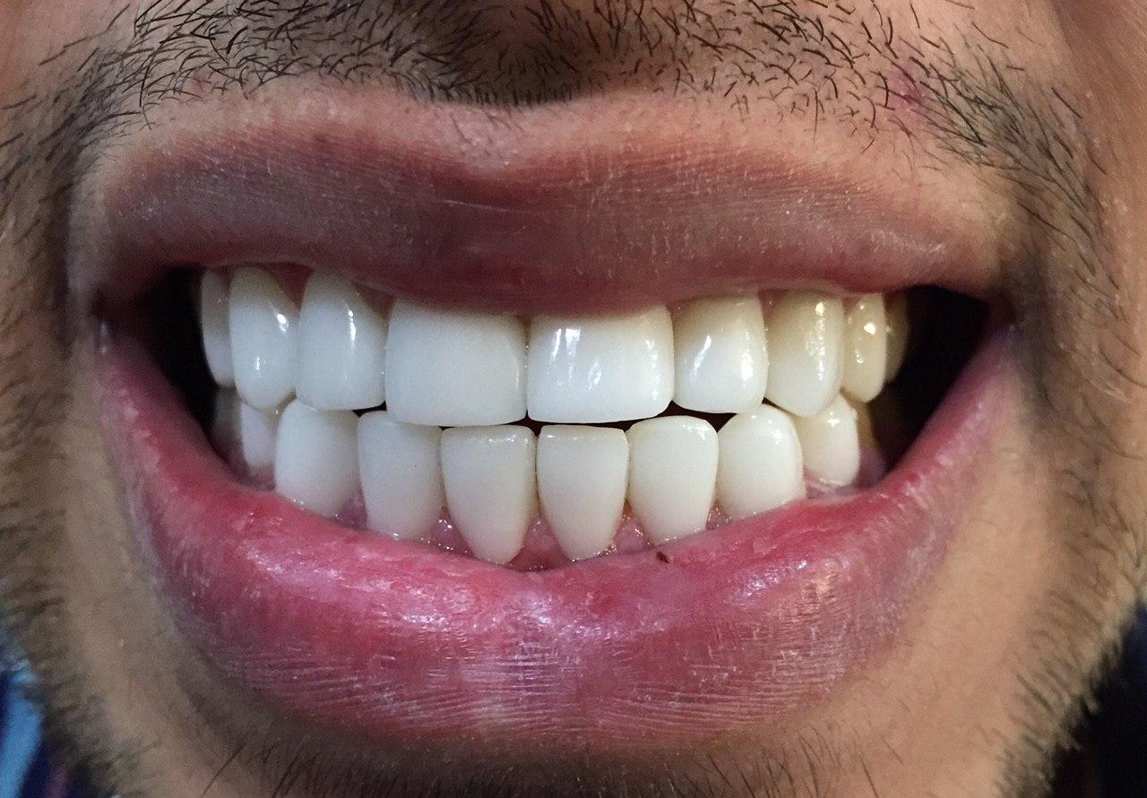 لمینت دندانهای فک بالا و پایین