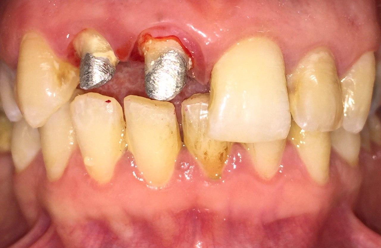 عصب کشی دندان قدامی