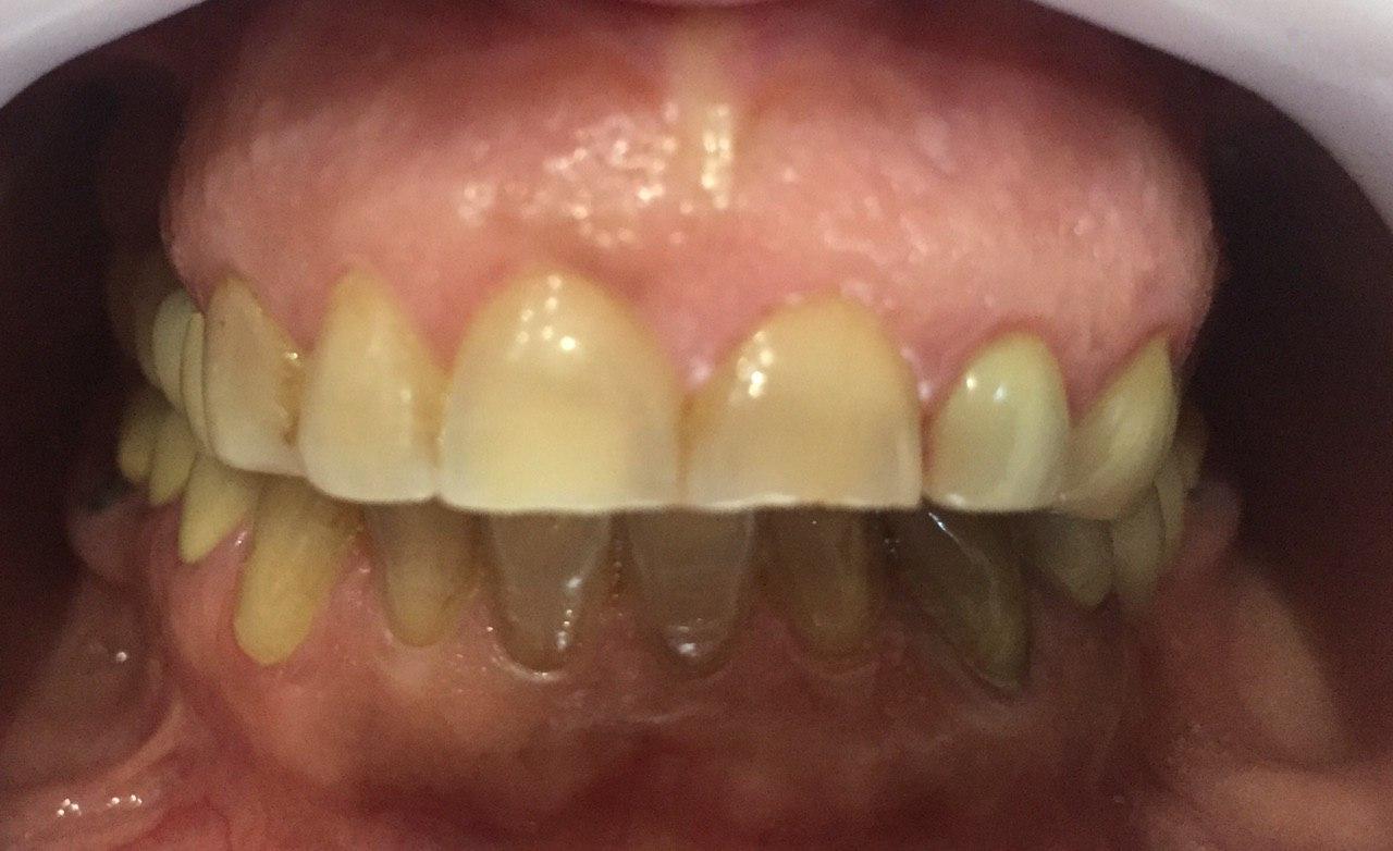 لامینت دندانی