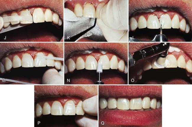 تغییر شکل مینای دندان