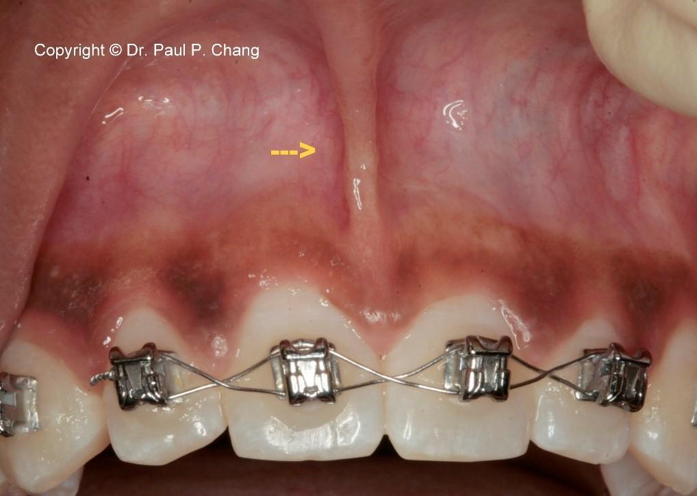 فرنوم و فرنکتومی در دندانپزشکی