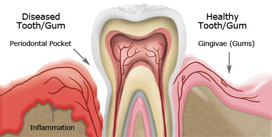 رژیم غذایی برای سلامت دندان