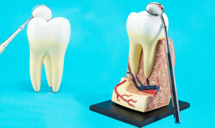 پالپیت دندان
