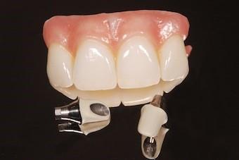 روکش پیچ شونده و چسب شونده ایمپلنت دندانی
