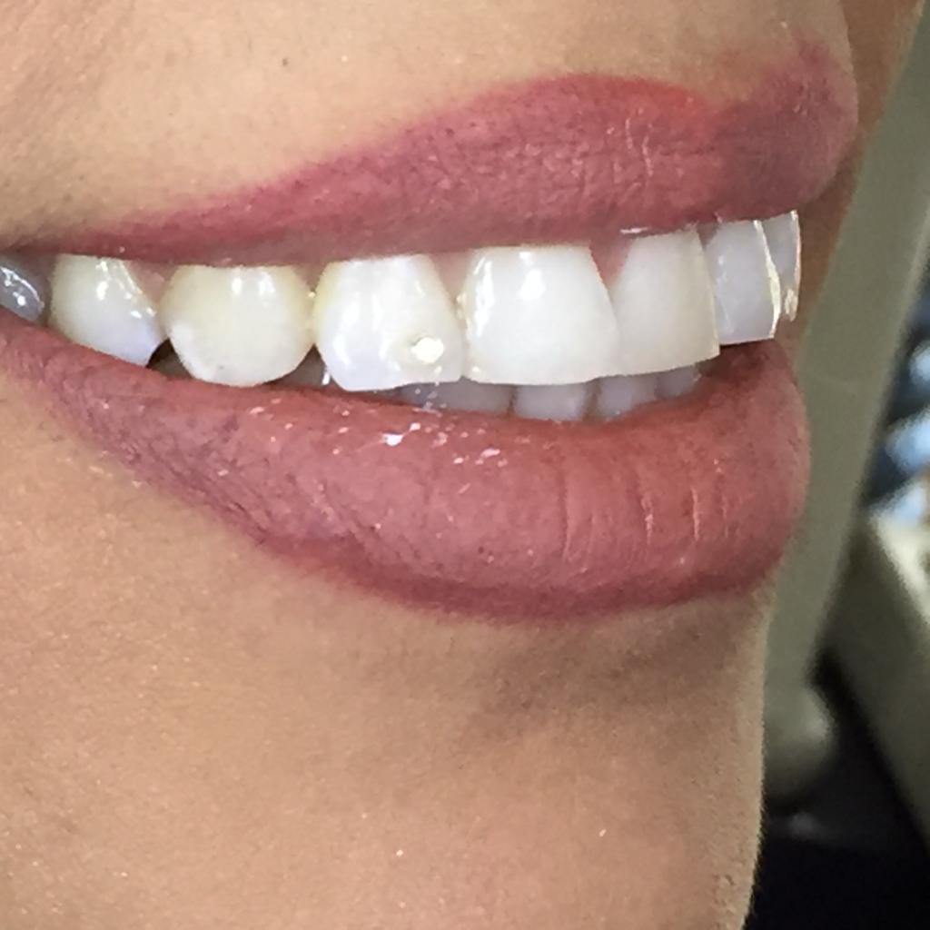 بلیچینک و ترمیم زیبایی دندان قدامی