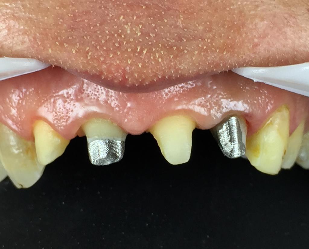 درمان ریشه، بازسازی تاج دندان