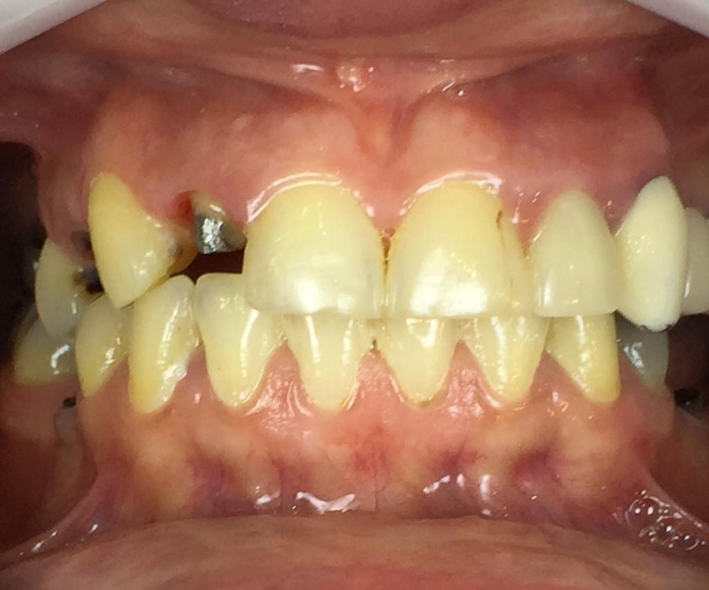 بازسازی دندان شکسته