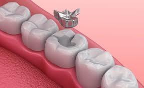 پرکردن دندان با آمالگام