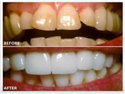 تفاوت لمینت و ونیر دندان