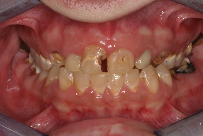 تاثیر سیگار بر دهان و دندان